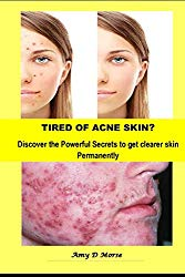 TIRED OF ACNE SKIN?    Discover the Powerful Secrets to get clearer skin Permanently (Volume)